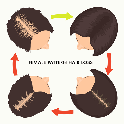 female pattern hair loss stages