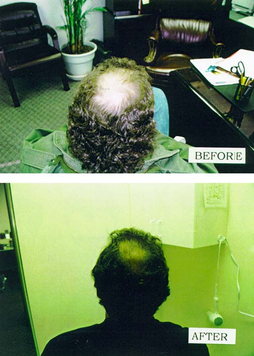 Before After Photos using HairGenesis