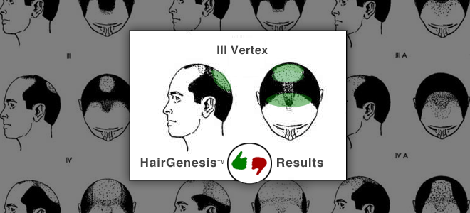 hairgenesis results