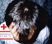 treated twin hair growth