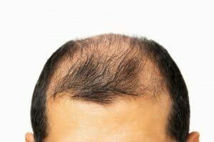 hair loss in men - genetics