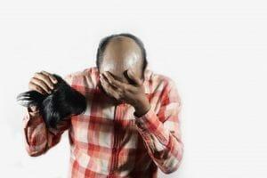 hair loss in men - hormones